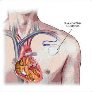 cardiodesf01